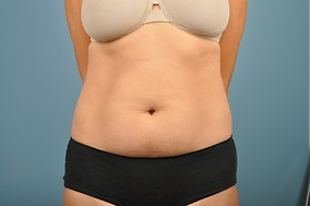Abdominoplasty Before & After Patient #835