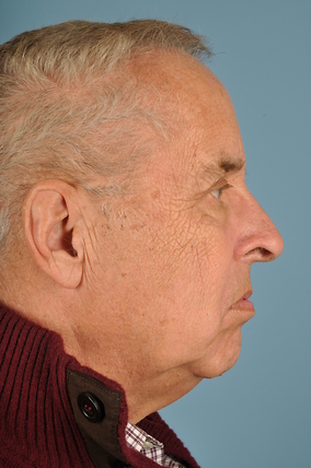 Facelift Before & After Patient #2325
