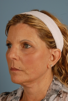 Facelift Before & After Patient #2372