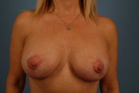 Breast Lift with Implants Before & After Patient #1762
