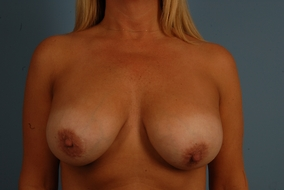 Revision Breast Augmentation Before & After Patient #2044
