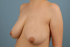 Breast Reduction Before & After Patient #2028