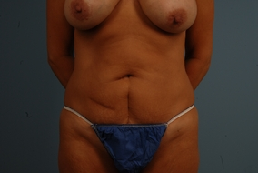 Abdominoplasty Before & After Patient #853
