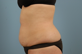 Abdominoplasty Before & After Patient #708