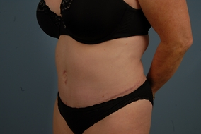 Abdominoplasty Before & After Patient #957