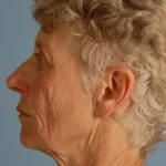 Facelift Before & After Patient #2067