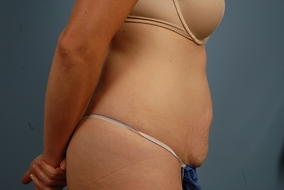 Abdominoplasty Before & After Patient #811
