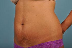 Abdominoplasty Before & After Patient #722