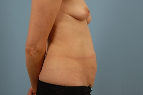 Abdominoplasty Before & After Patient #1009