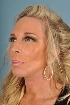 Facelift Before & After Patient #2279