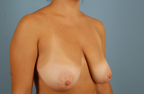Breast Reduction Before & After Patient #1994