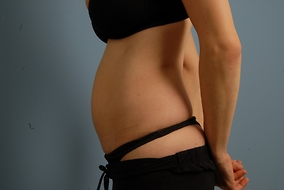 Abdominoplasty Before & After Patient #688