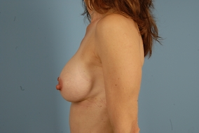 Breast Augmentation Before & After Patient #1576