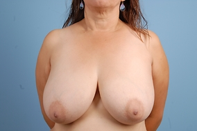 Breast Lift Before & After Patient #1698
