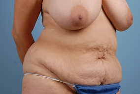Abdominoplasty Before & After Patient #893