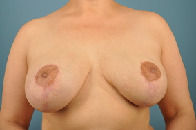 Breast Lift Before & After Patient #1672