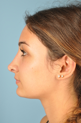 Rhinoplasty Before & After Patient #1825