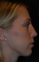 Rhinoplasty Before & After Patient #1969