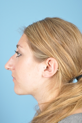 Rhinoplasty Before & After Patient #1875
