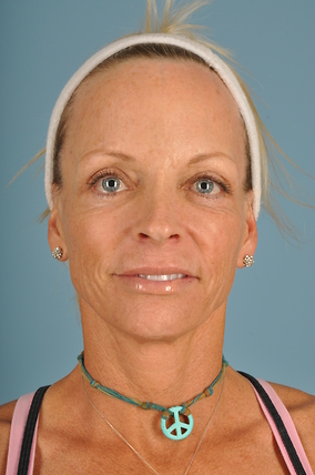 Facelift Before & After Patient #2181