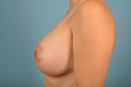 Breast Lift with Implants Before & After Patient #1861