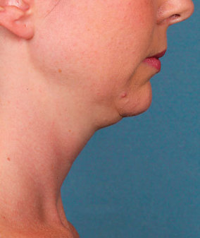 Kybella Before & After Patient #2389