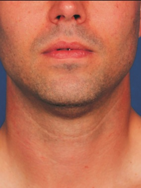 Kybella Before & After Patient #2384