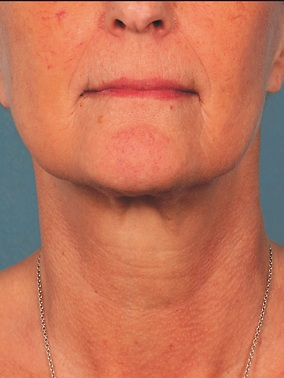 Kybella Before & After Patient #2394