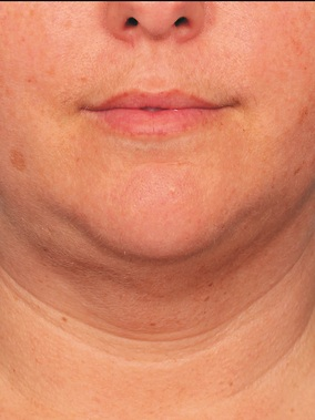 Kybella Before & After Patient #2399