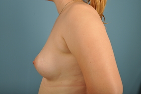Breast Augmentation Before & After Patient #1515
