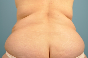Abdominoplasty Before & After Patient #829