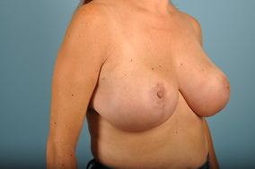 Breast Lift Before & After Patient #1640