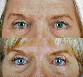 Brow Lift Before & After Patient #2040