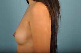Breast Augmentation Before & After Patient #1204
