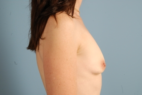 Breast Augmentation Before & After Patient #1219