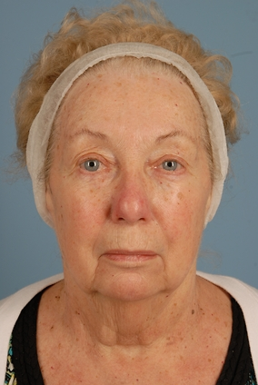 Upper Eyelid Blepharoplasty Before & After Patient #1726