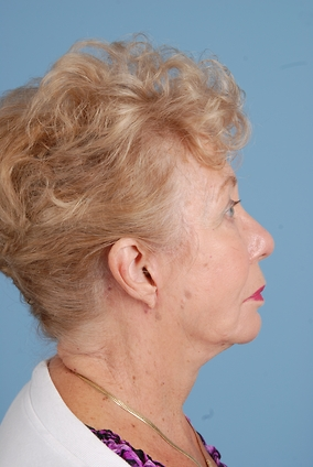 Facelift Before & After Patient #2313
