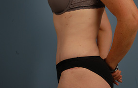 Abdominoplasty Before & After Patient #743