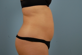 Abdominoplasty Before & After Patient #778