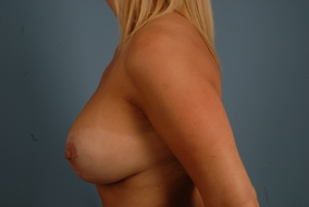 Breast Augmentation Before & After Patient #1901