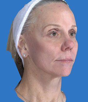 Laser Resurfacing Before & After Patient #2342