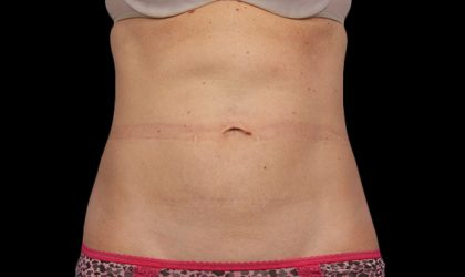 CoolSculpting Before & After Patient #2721
