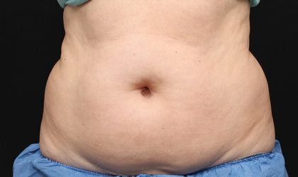 CoolSculpting Before & After Patient #2724