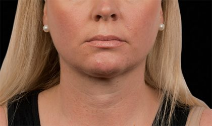 CoolSculpting Before & After Patient #2739