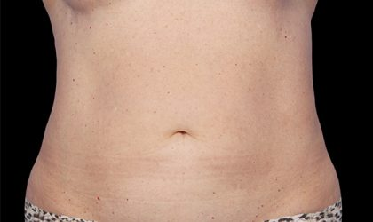 CoolSculpting Before & After Patient #2730